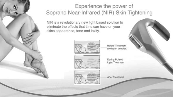 nir-soparno laser hair removal oakville